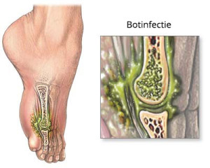infectie heupprothese symptomen